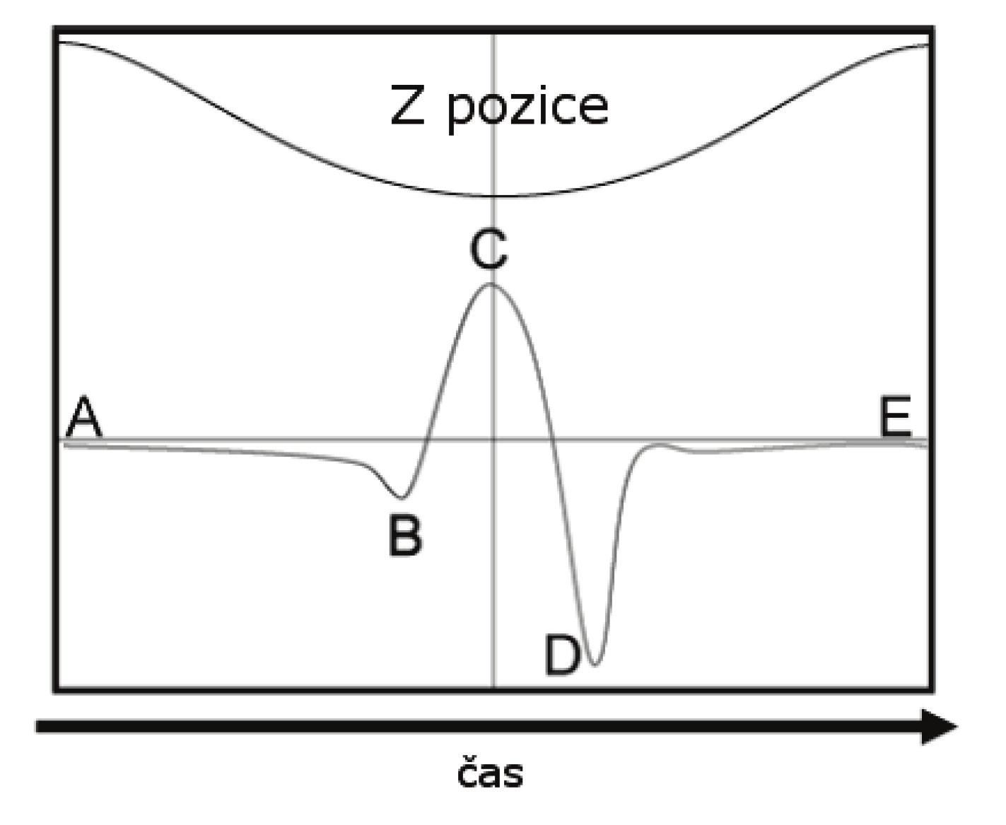 Průběh jednoho cyklu při Peak Force Tapping. V horní části pohyb vůči ose Z, ve spodní části silové působení v závislosti na čase. Upraveno z [24].