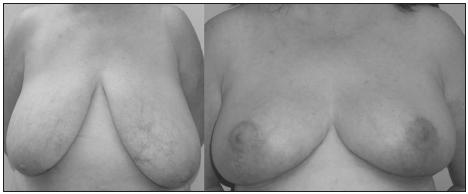 Fig. 2. Frontal pre and post operative view, asymmetry grade B (367 g)