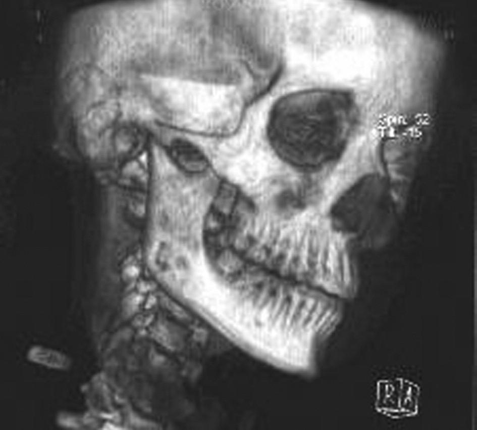 Prostorová CT rekonstrukce.