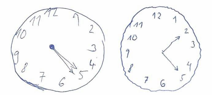 Ciferníky s různě závažnou odchylkou od správného řešení hodnocené škálou Addenbrookského kognitivního testu (ACE). Závažnější chyba je skórovacím systémem ACE hodnocena stejným počtem bodů jako chyba méně závažná. Oba ciferníky s požadavkem času 5 hod 10 min získají v ACE 4 body. V prvním ciferníku jsou zakresleny stejně dlouhé ručičky ukazující špatný čas, což považujeme za závažnou chybu. Druhý obsahuje pouze shodně dlouhé ručičky při správném nastavení. Fig. 1. Dials with different abnormalities compared to the correct performance rated using Addenbrooke´s Cognitive Examination (ACE) rules. A major mistake is rated as a minor one by the same number of points using a scoring system of ACE. Both dials with a time of 5 hours 10 minutes will be scored with 4 points according to ACE instructions. The first dial contains equally long hands showing the wrong time. We consider it as the major mistake. The second one contains only equally long hands which are placed correctly.