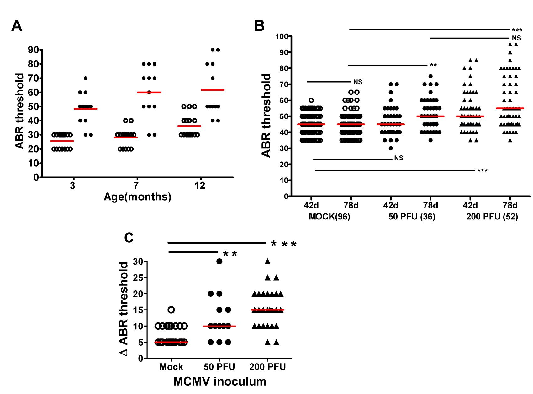Progressive hearing loss and virus inoculum effect on progression of hearing loss in MCMV infected mice.