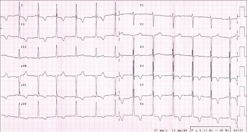 IS, 25 let, obraz hypertrofické kardiomyopathie. EKG nález splňuje voltážová kriteria pro hypertrofii LK, dále negativní T vlny ve svodech I,II, aVL, aVF, V4-6, malá denivelace ST V5-6. Echokardiograficky rozměr septa 37 mm, známky obstrukce s gradientem 95 mm Hg. Pacientce byl preventivně implantován kardioverter defibrilátor z primárně preventivní indikace (sestra s hypertrofickou kardiomyopathií resuscitována pro náhlou srdeční zástavu).