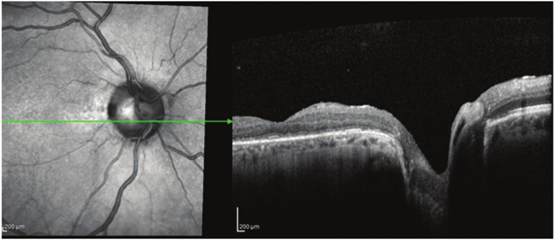 Pacient č. 6 Lineární horizontální transfoveolární OCT sken OP po PPV obnovení foveolární deprese