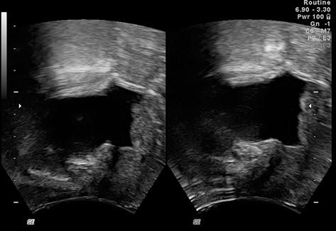Dislokace uretry při nadměrném tlaku ultrazvukové sondy; obrázek vlevo – nadměrný tlak sondy, symfýza je blízko u sondy a uretra je elevována; obrázek vpravo – minimální tlak sondy, uložení uretry není ovlivněno