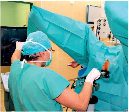 Celkový pohled na uspořádání operačního pole (v levé části UZ monitor)