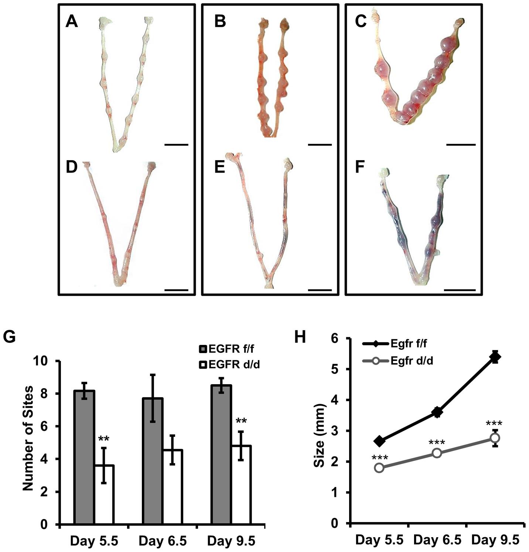<i>Egfr</i> ablation causes blastocyst implantation site demise.