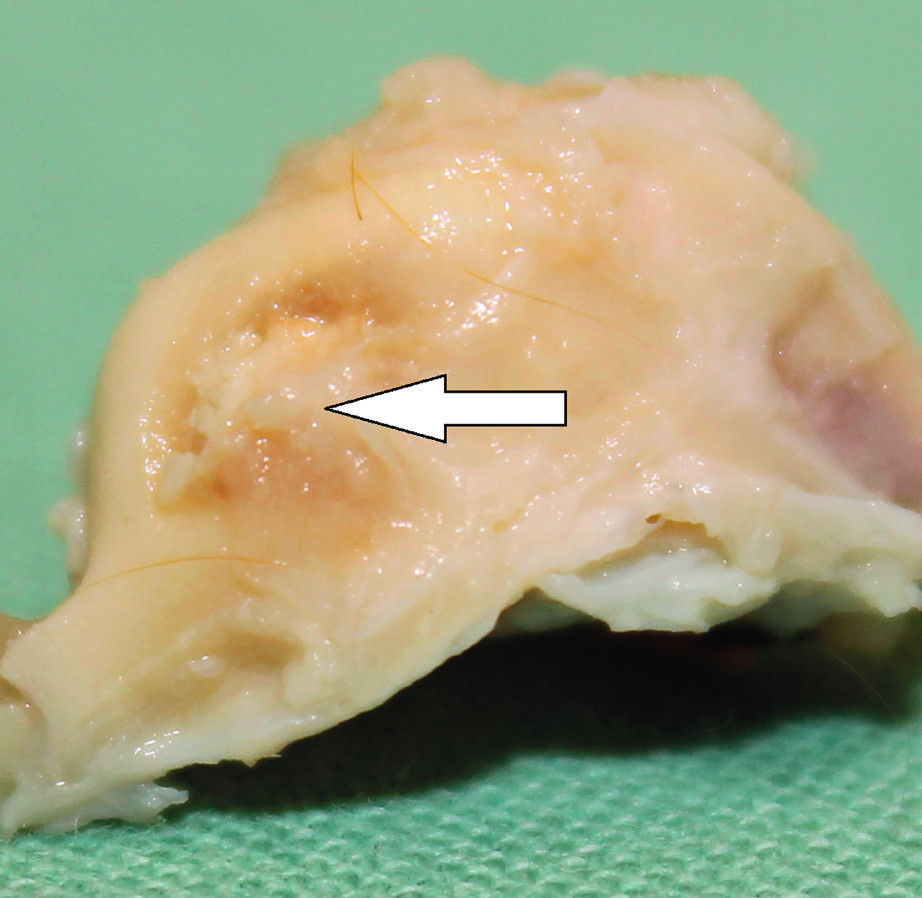 Levá spánková kost morčete 30 dní po implantaci MSC. Šipka ukazuje zhojení kostního defektu v místě implantace biomateriálu.