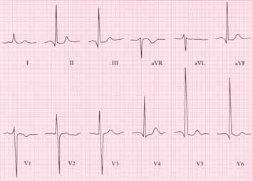 EKG u chronické aortální regurgitace ukazuje zvýšenou voltáž nad levou komorou (hluboké S ve V1 a vysoké R ve V6)
