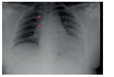 Na rentgenovém snímku pacientka se zavedeným ventrikuloatriálním shuntem (průběh označen červenými šipkami)