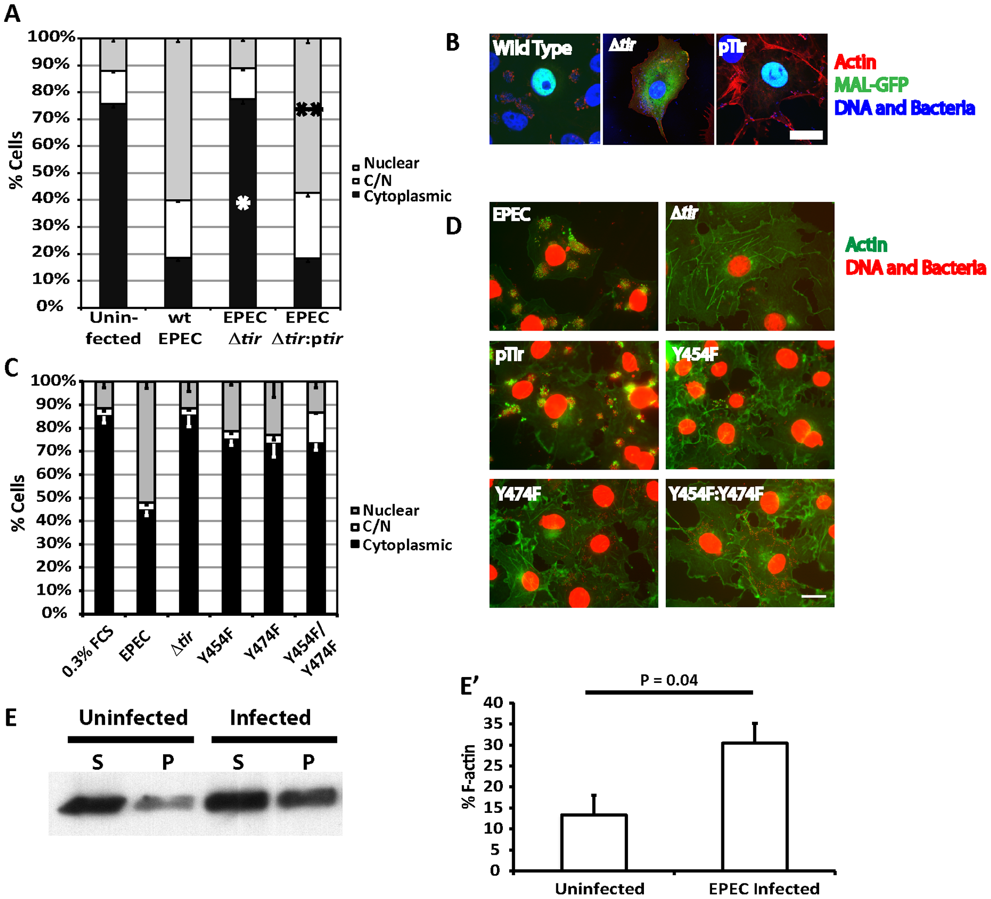Tir is essential for EPEC induced MAL-GFP translocation.