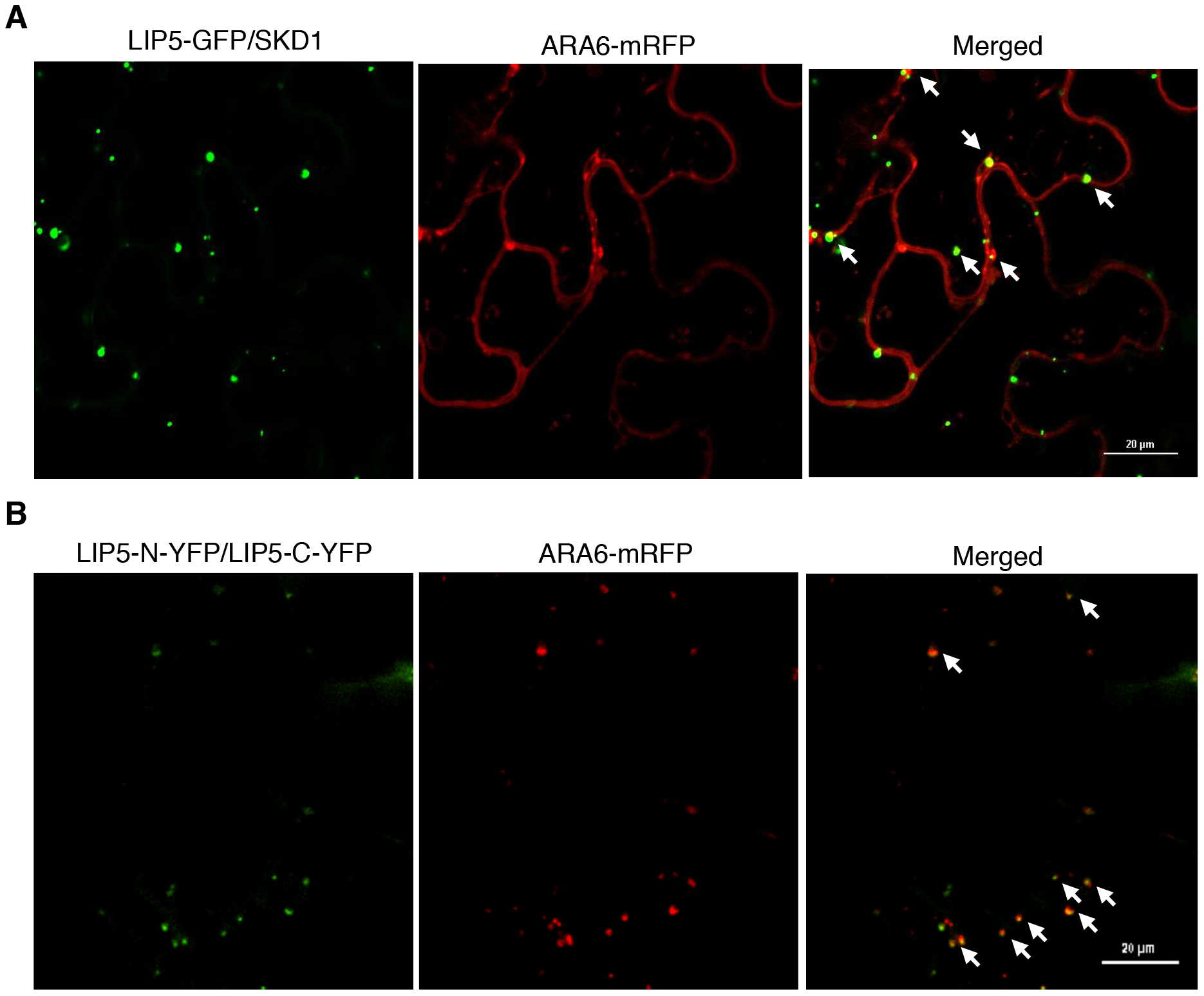 Subcellular colocalization of LIP5 with ARA6-mRFP fusion protein in <i>N. benthamiana</i>.