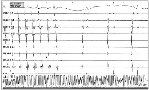 RFA flutteru síní I. typu. Během aplikace RF energie dochází k ukončení flutteru síní I. typu a vzniká sinusový rytmus. Následuje dokončení bidirekcionálního bloku v oblasti kavotrikuspidálního istmu. CS – koronární sinus, HBE – Hisův svazek, MRA – halo katetr, RVA – pravá komora, USER – ablační katetr.