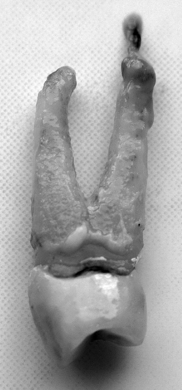 Chronická apikálna parodontitída – periapikálny granulóm (zub 24) – autor Ján Kováč Fig. 1. Chronic apical periodontitis – periapical granuloma (tooth 24) – Author Ján Kováč
