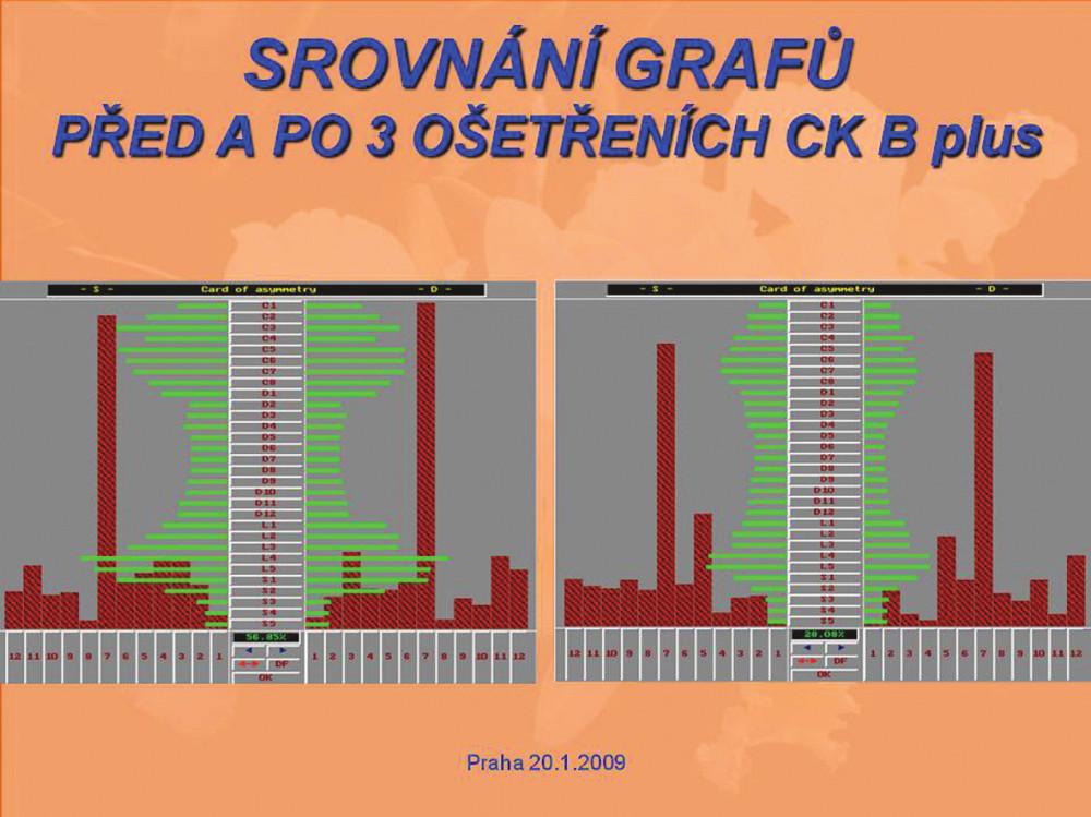 Srovnání grafů před a po 3 ošetřeních CK B plus.