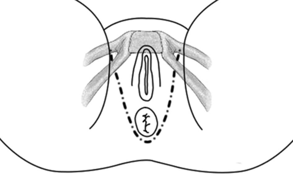 Schéma umístění pásky Fig. 1: Outline of the anal sling position