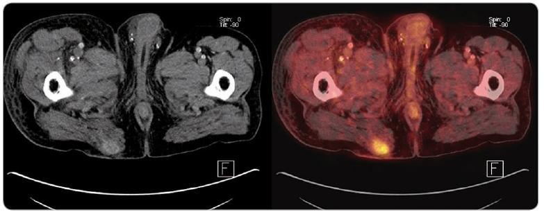 PET/ CT obraz rekurujícího ložiska karcinomu z Merkelových buněk v oblasti pravé hýždě u pacienta po kombinované transplantaci slinivky a ledviny.