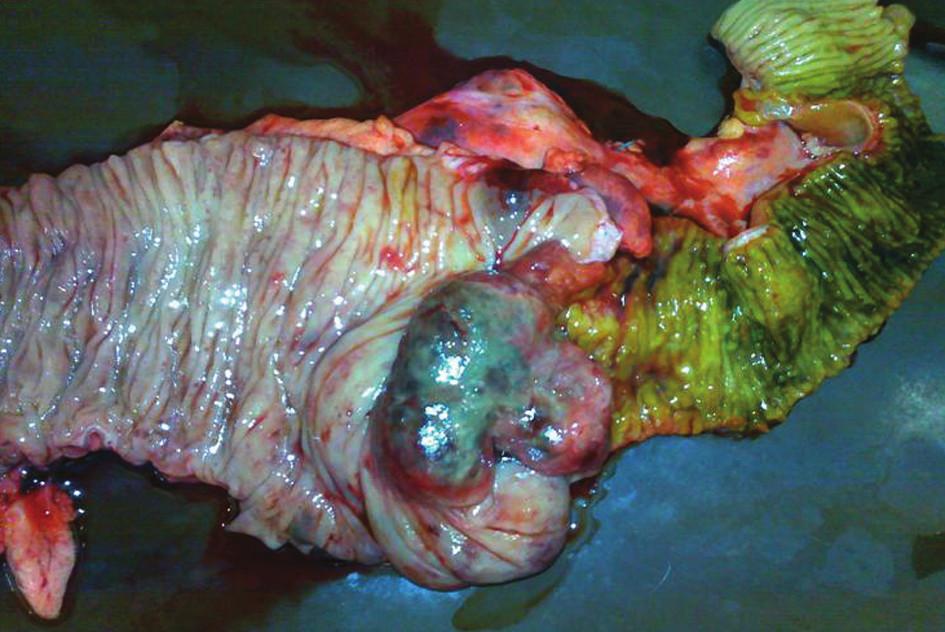 Resekovaná část ileocekálního přechodu s tumorem Fig. 1: Resected part of the terminal ileum and caecum with tumor