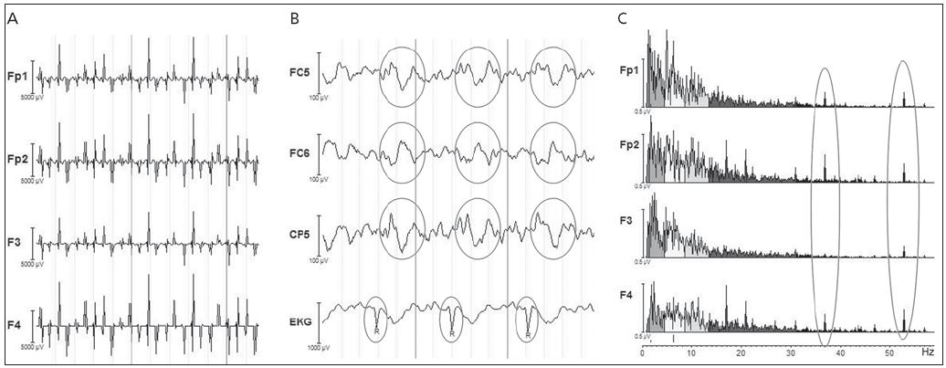Artefakty v EEG signálu. a) gradientní artefakt, b) pulzní artefakt, c) artefakt způsobený pumpou chladicí kapaliny ve formě špiček ve spektru EEG signálu, typicky kolem 40 Hz.
