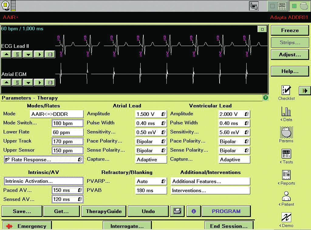 """TherapyGuide: Po stisknutí tlačítka """"Get Suggestions"""" se objeví obrazovka se základními parametry programace. Navržené změny jsou orámovány modře."""