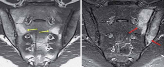 Edém kostní dřeně v oblasti SI skloubení dle MRI (STIR), tuková infiltrace (T1).