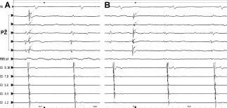 """Izolace plicní žíly při sinusovém rytmu. Na obrázku je záznam z plicní žíly snímaný cirkulárním katétrem při sinusovém rytmu. Aktivita snímaná cirkulárním katétrem je tvořena prvním tupým (""""far field"""") potenciálem ze svaloviny srdeční síně a 2. potenciálem reprezentujícím aktivaci svaloviny ve stěně plicní žíly. Jejich pořadí odráží pasivní průnik sinusové elektrické aktivace ze síně do nitra plicní žíly. V okamžiku úplné izolace plicní žíly dochází k úplnému přerušení vedení mezi levou síní a plicní žilou, což se projeví vymizením potenciálu z plicní žíly (A). Následně spontánní ektopická aktivace v plicní žíle neuchvacuje levou síň (a nemůže spouštět, resp. rychlá aktivita ve formě pravidelné či nepravidelné tachykardie nemůže řídit fibrilaci síní) (B)."""