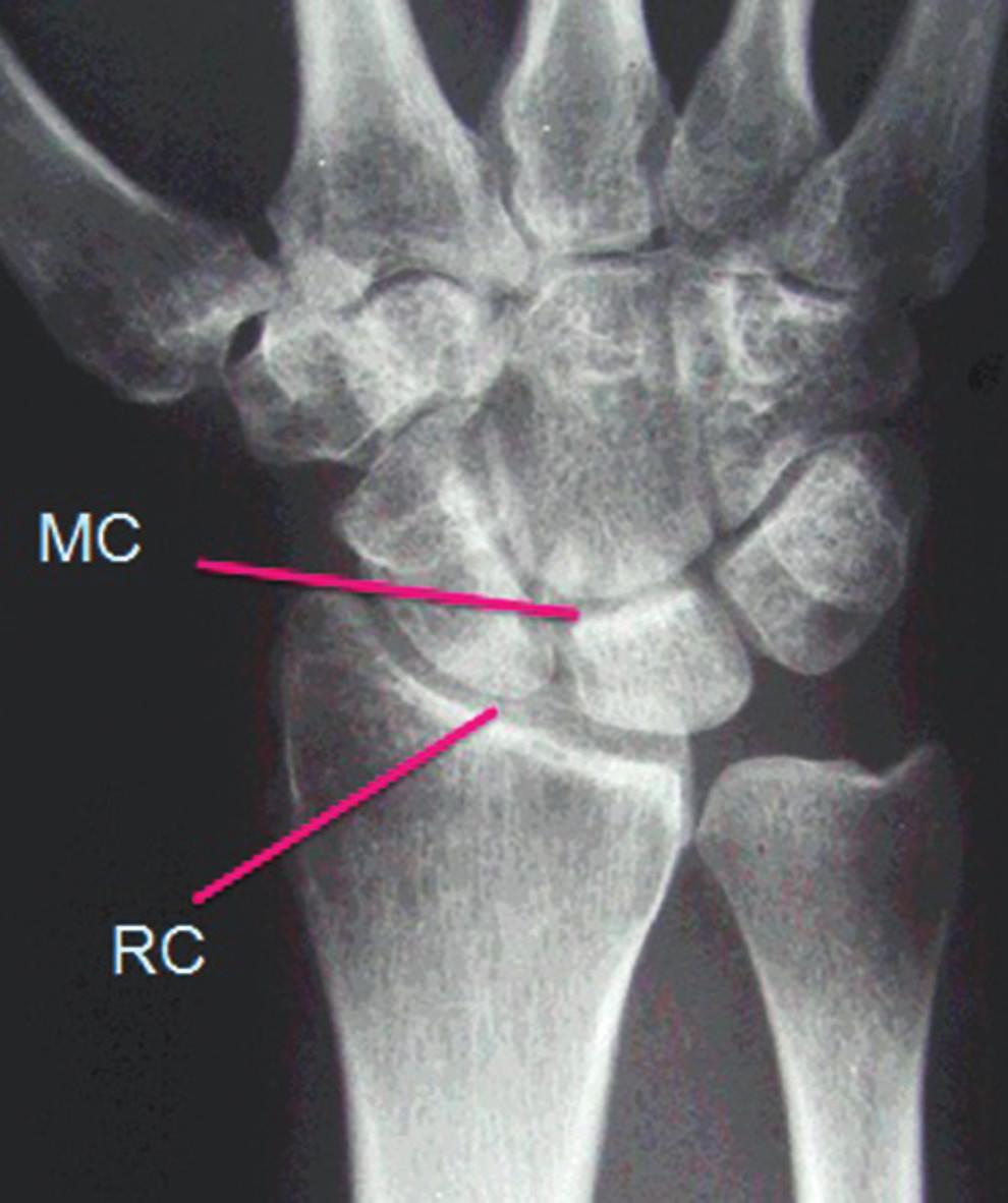 Rentgenový snímek zápěstí
