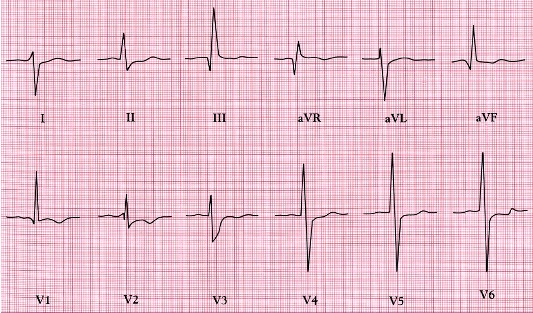 EKG při Eisenmengerově reakci – deviace osy doprava, dominantní kmity R a invertované vlny T v pravých hrudních svodech, a hluboké kmity S ve V5 a V6. NB: 1mV = 0,5 cm.