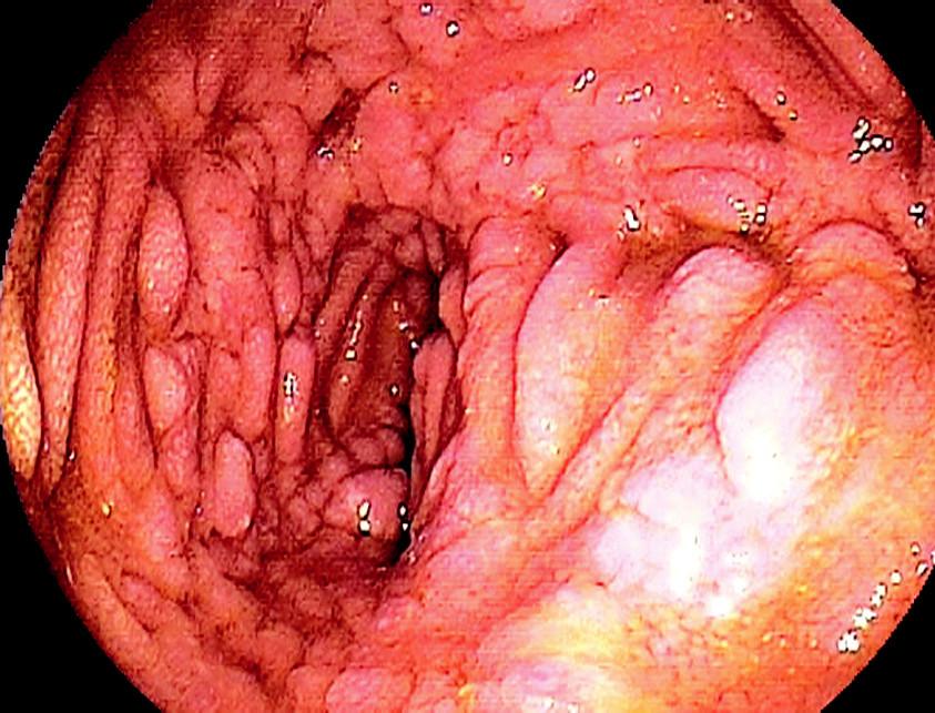 "Obr. 2B. Crohnova choroba, zánětlivé polypy sliznice (""cobble stone"")"