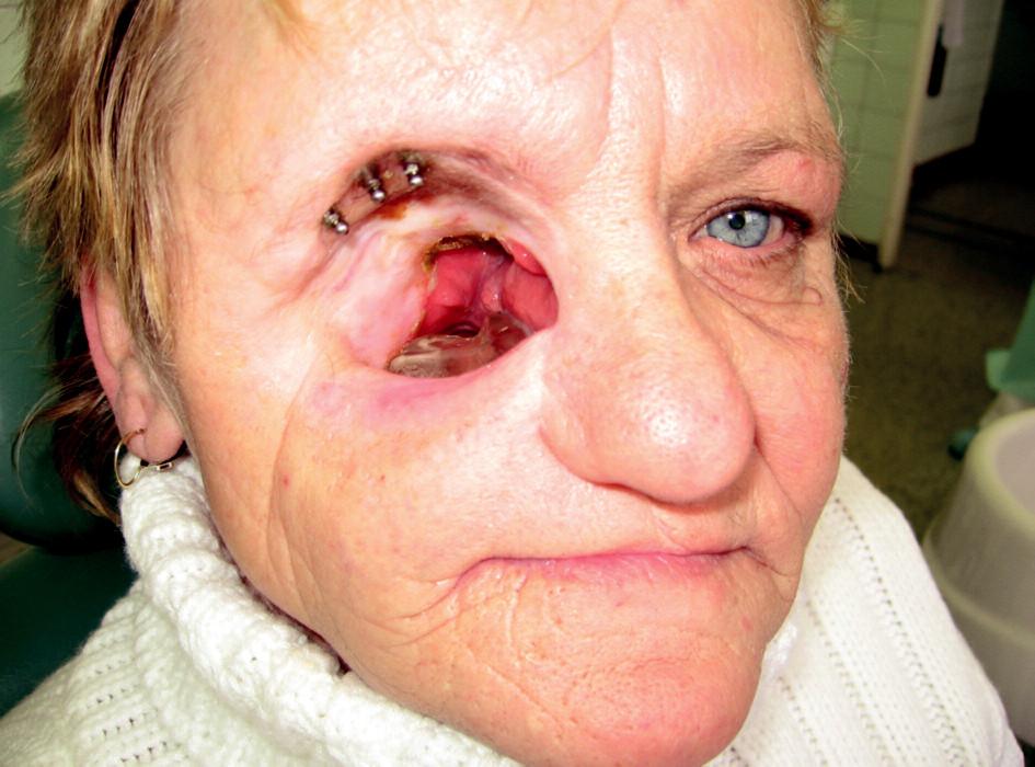 Rozsáhlý defekt střední obličejové etáže, obturační horní celková náhrana in situ, v margo supraorbitalis se nacházejí tři válcové implantáty s kulovými attachmenty.