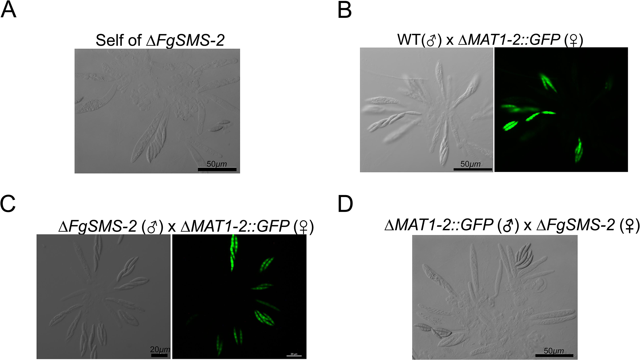 Morphology of asci and ascospores produced in the self-cross of Δ<i>FgSMS-2</i> (A) and outcrosses between WT(♂) and Δ<i>MAT1-2</i>::<i>GFP</i>(♀) (B), between Δ<i>FgSMS-2</i>(♂) and Δ<i>MAT1-2</i>::<i>GFP</i>(♀) (C), and between Δ<i>MAT1-2</i>::<i>GFP</i>(♂) and Δ<i>FgSMS-2</i>(♀) (D).