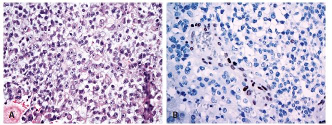 Atypický teratoidní/rhabdoidní nádor (A) se ztrátou imunoexprese INI1 proteinu při pozitivní vnitřní kontrole (B) (400x).