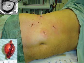 Obrázek břicha pacienta po dokončené resekce technikou s klampováním hilu. Indikací byl tumor pravé ledviny velikosti 2 cm, jak je patrno na vloženém výřezu z CT. Ve výřezu je patrný též pooperační preparát, který byl tvořen papilárním renálním karcinomem. Týž pacient je na obrázcích 3, 7 a 8.