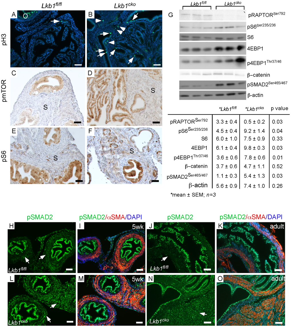 Activation of mTORC1 and TGFβ signaling in the stromal compartment of mutant oviducts.