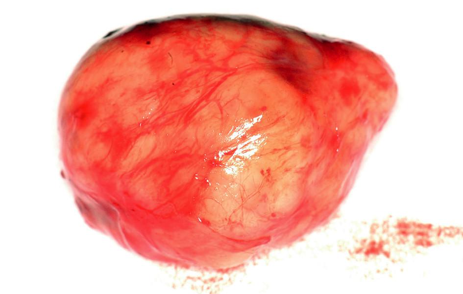 Exstirpovaná rezistence Fig. 4. The tumor specimen