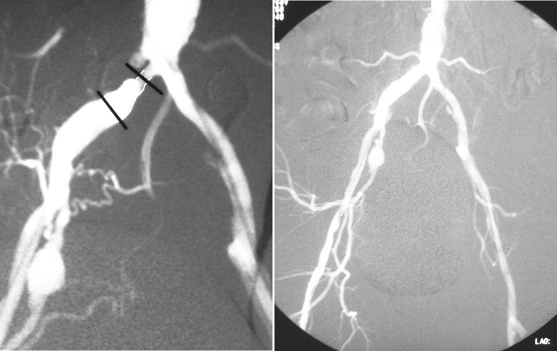 a, b. DSA vyšetrenia pacient č. 3, a) kritická odstupová stenóza arteria iliaca communis vpravo 1 cm dlhá s postenotickou dilatáciou. Na arteria iliaca interna vpravo 1 cm po jej odstupe je aneuryzma 1,9x1,3 cm. Vľavo ľahká stenóza arteria iliaca communis v periférnej časti s podmínovaným okrajom. Odstupový uzáver arteria iliaca interna vľavo b) stav po perkutánnej transluminálnej angioplastike arteria iliaca communis vpravo s implantáciou stentu Pic. 6 a, b. DSA examination - Patient Nr. 3, a) critical stenosis of the common iliac artery branch on the right, 1cm long with poststenotic dilation. An aneurysm measuring 1.9x1.3 cm is located on the internal iliac artery, 1 cm after its branching. Mild peripheral stenosis of the left common iliac artery with its edge undermined. Branch closure of the left internal iliac artery b) status following percutaneous transluminary angioplasty of the right common iliac artery with a stent implantation