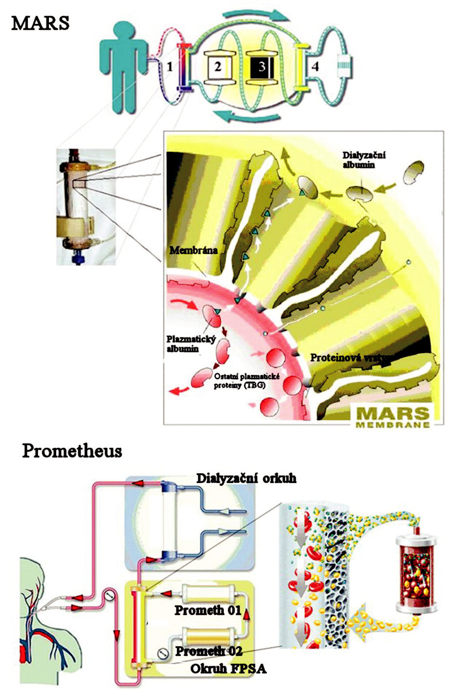 Schematické znázornění principu eliminace v systému MARS® a Prometheus® (převzato z informačního letáku).