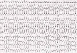 Setrvalá monomorfní komorová tachykardie (hemodynamicky tolerovaná) u nemocného s arytmogenní kardiomyopatií levé komory