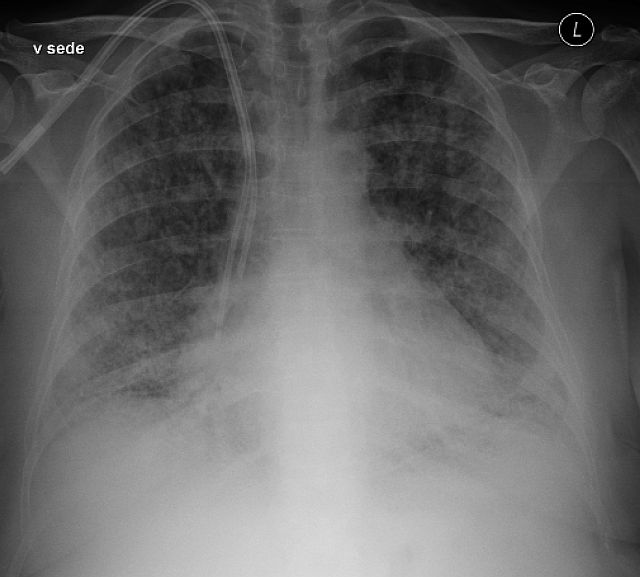 Rentgenový snímek plic s bilaterálním infiltrátem u pacienta s TRALI