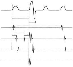 Základní sada intrakardiálních elektrokardiogramů. první stopa – povrchové EKG, druhá stopa – HRA – horní pravá síň s označením základní délky cyklu – BCL, His – hisogram s označeným potenciálem dolní síně A, Hisova svazku H, pravé komory V a základních převodních intervalů IACT – čas intraatriálního vedení, AH – charakterizuje vedení uzlem, HV interval charakterizuje infranodální (distální) vedení vzruchu. CS – coronary sinus – záznam z koronárního sinu, kde je patrný A potenciál z levé srdeční síně a V potenciál z levé srdeční komory, RVA – right ventricular apex – elektrokardiogram z hrotu pravé srdeční komory