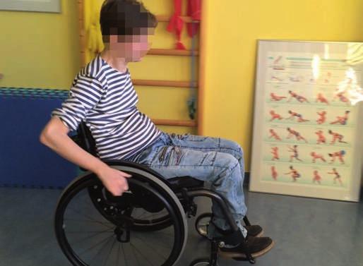 Postura tetraplegického pacienta vsedě na vozíku. Pro zajištění stability je pánev nastavená do retroverze, zatížení je více na sakru. Trup je pasivně v kyfóze, hlava držena v předsunu. Fig. 2. Posture of a tetraplegic patient sitting in a wheelchair. To ensure stability, the pelvis is in retroversion and the weighting is shifted towards the sacrum. The trunk is passively in kyphosis, the head held forward.