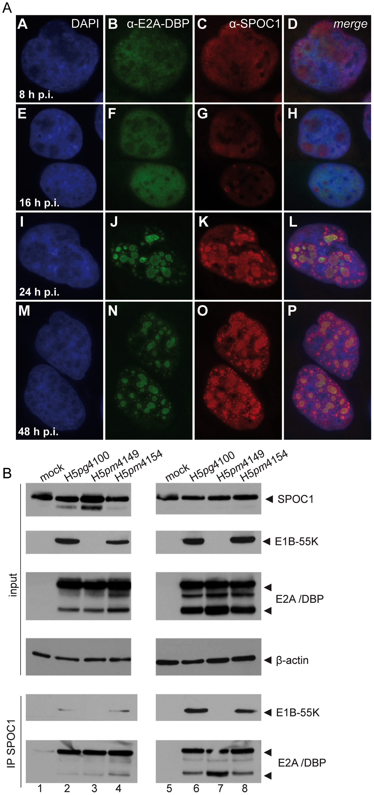 SPOC1 is recruited to Ad replication centers during infection.