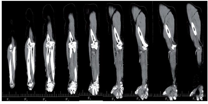 CT vyšetření pravé horní končetiny bez průkazu nádorového ložiska 07/2017