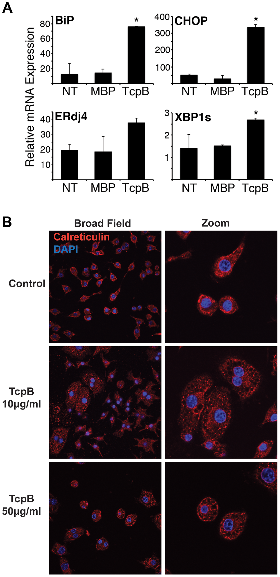 TcpB protein induces UPR and ER restructuring.