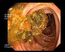 Stupeň střevní přípravy: C, špatný. Fig. 3. The level of bowel preparation: C, fair.