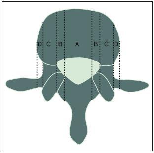 Obr. 2a. Rozdělení jednotlivých úseků páteřního kanálu a lokalizace stenózy v transverzální rovině. A: centrální stenóza, B: laterální stenóza (stenóza laterálního recesu), C: laterální stenóza (stenóza kořenového kanálu), D: laterální stenóza (extraforaminální).