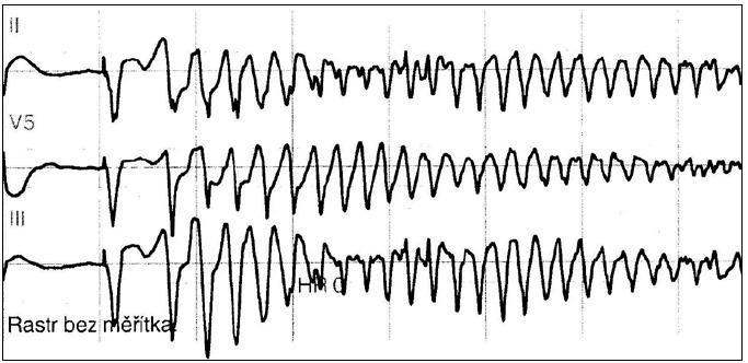 Epizoda komorové tachykardie torsade de pointes zachycená na monitoru u 83leté pacientky přijaté pro fibrilaci síní s pomalou odpovědí komor při intoxikaci digoxinem a verapamilem, s hypokalemií po diuretické léčbě. Situace byla vyřešena vysazením léku, korekcí hypokalemie a dočasnou kardiostimulací.