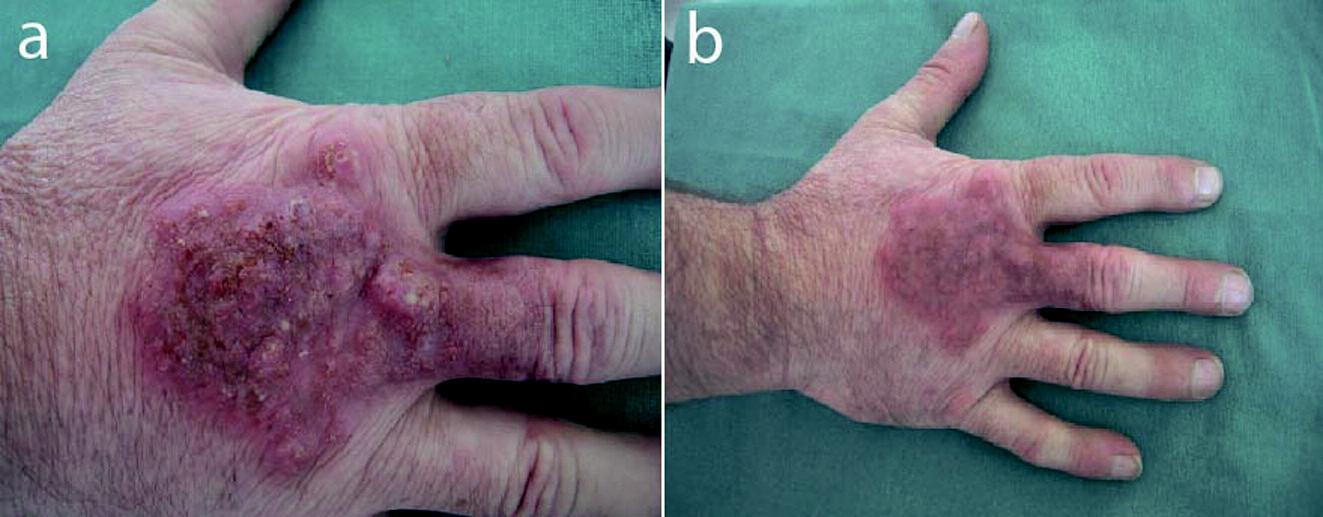 Obr. 2. Pacient č.2: a) dorsum pravej ruky – pred liečbou, b) dorsum pravej ruky – po 4 týždňoch liečby klindamycínom.
