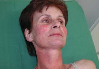 Kožní změny při syndromu karcinoidu – teleangiektazie v obličeji.