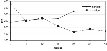 Tloušťka neuroretiny ve fixačním bodě u benigních a maligních lézí