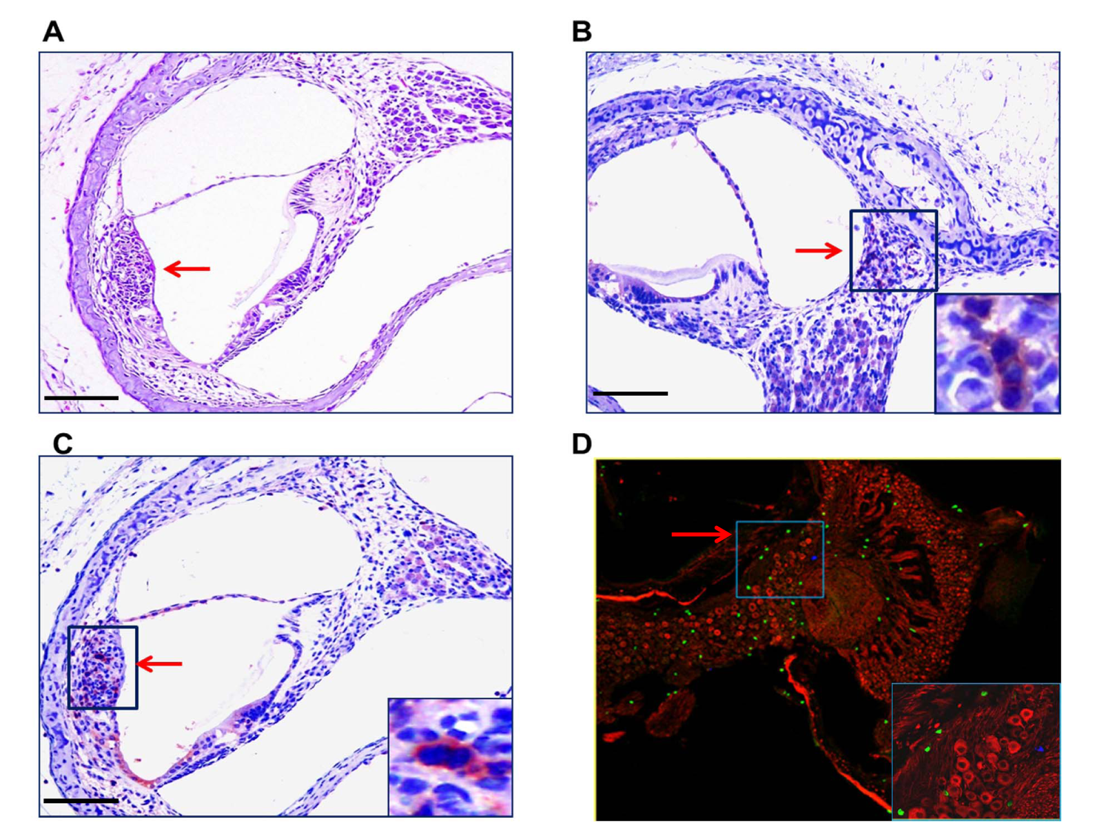 Mononuclear cells infiltrates in the cochlea of infected mice.